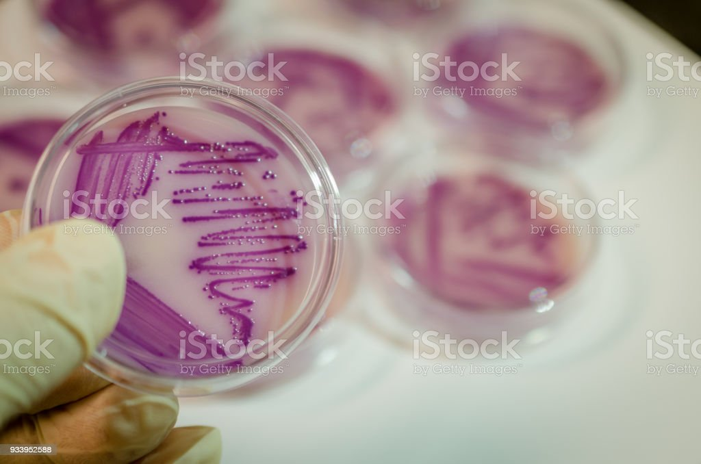 Bacterial culture plate with E. coli colony stock photo