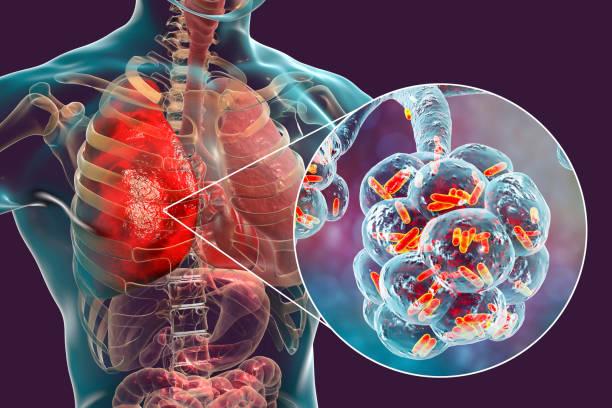 Bacterial pneumonia, medical concept stock photo