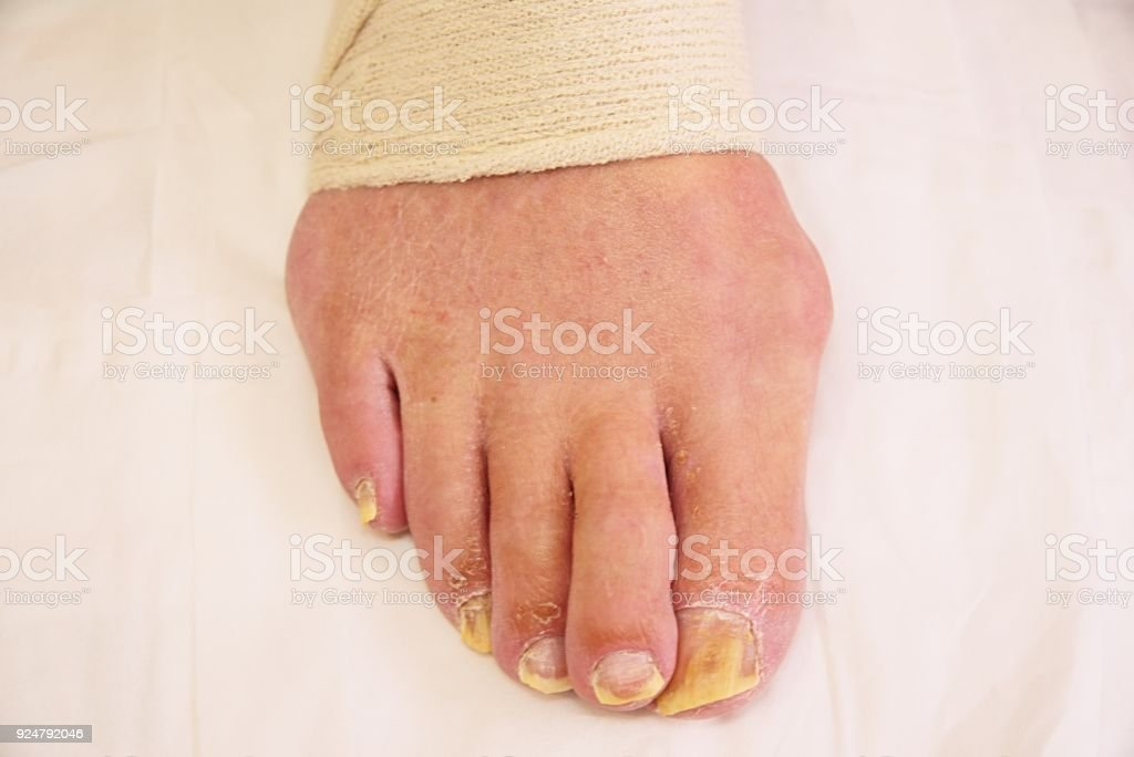 Bad Foot Skin Bacterial Fungal Infection With Damaged Nail Close Up ...