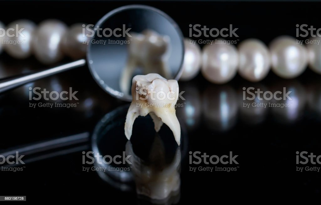 bad rotten tooth pulled and stands opposite the offices of the mirrors and dazzling white pearls on a black isolated background stock photo