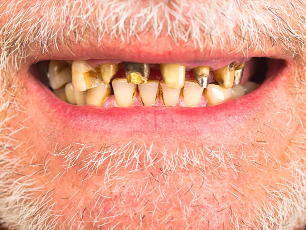 bad teeth - gold tooth stock photos and pictures