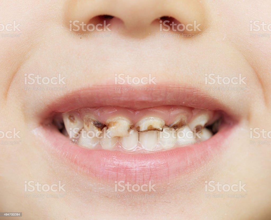 bad teeth stock photo
