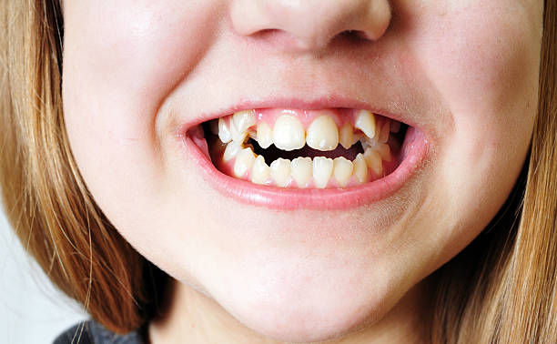bad teeth - ugly girl stock photos and pictures