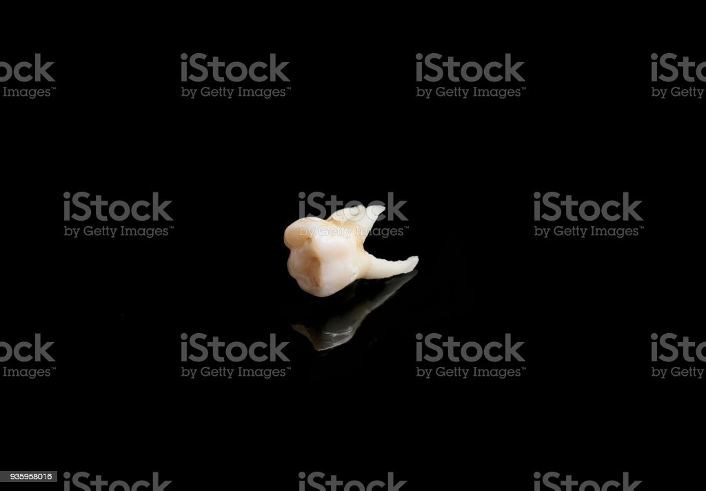 bad tooth remote on a black isolated background stock photo
