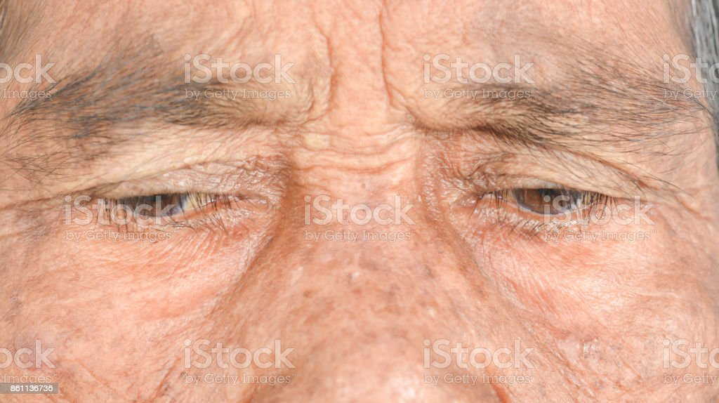 bag under the eye  of old women stock photo