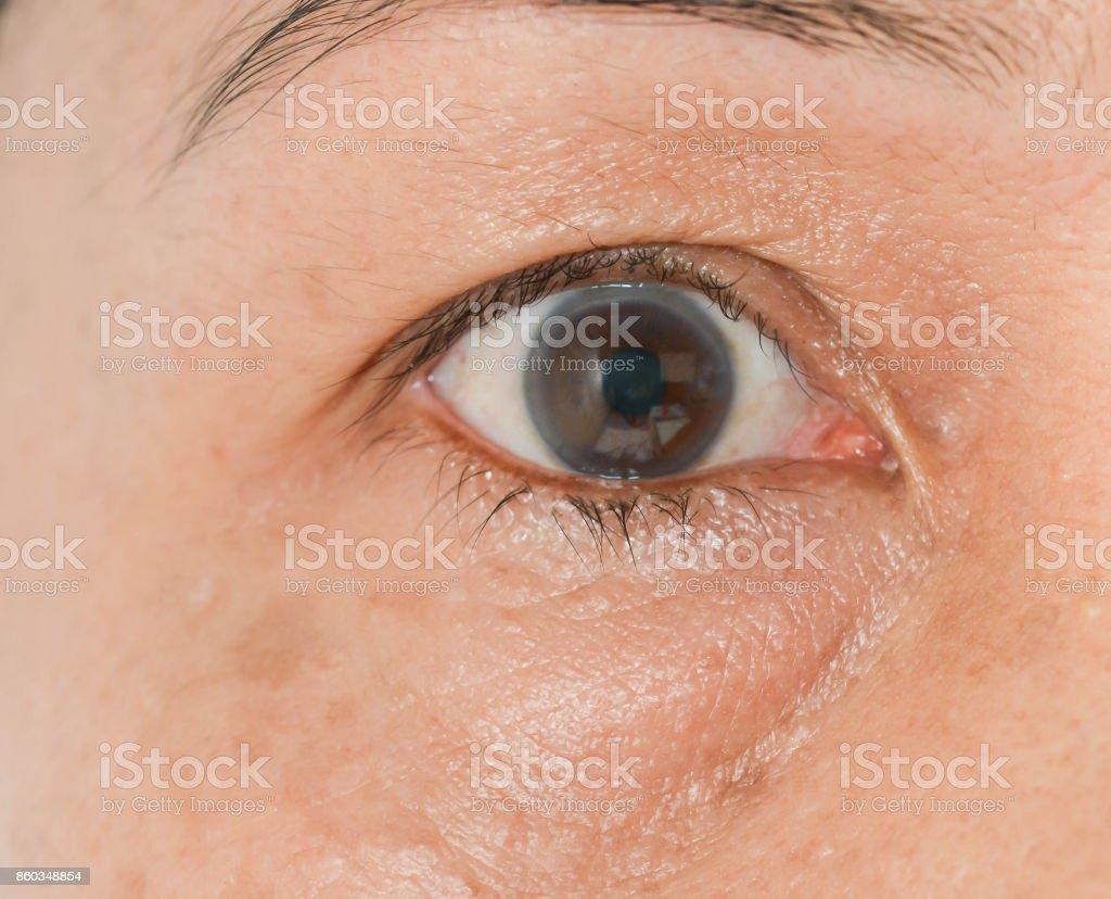 bag under the eye women stock photo