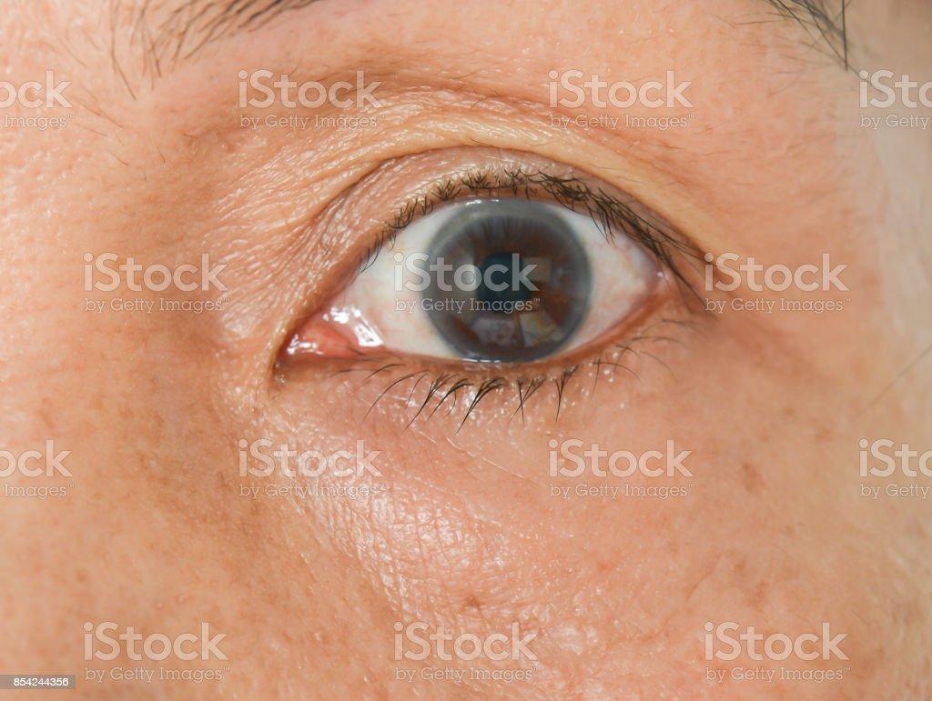 bag under the eyes stock photo
