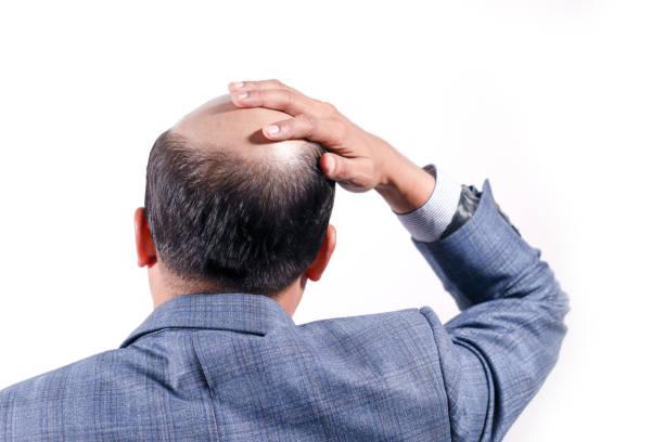흰색 배경으로 뒤에서 두 피 보기에 그의 머리를 대머리 사업가 - 가발 뉴스 사진 이미지