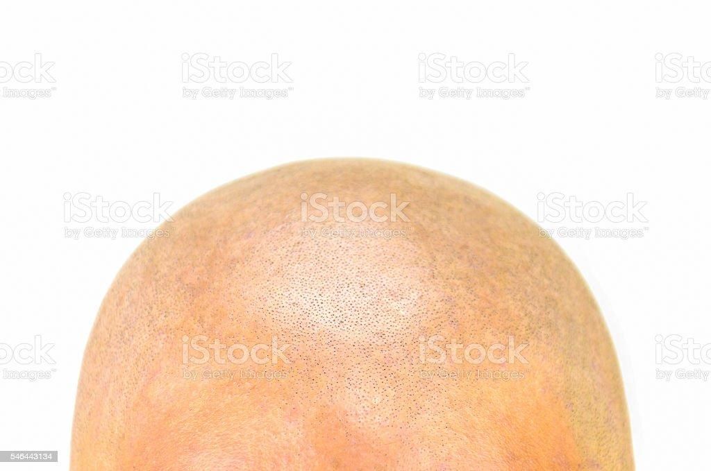 bald forehead Closeup stock photo