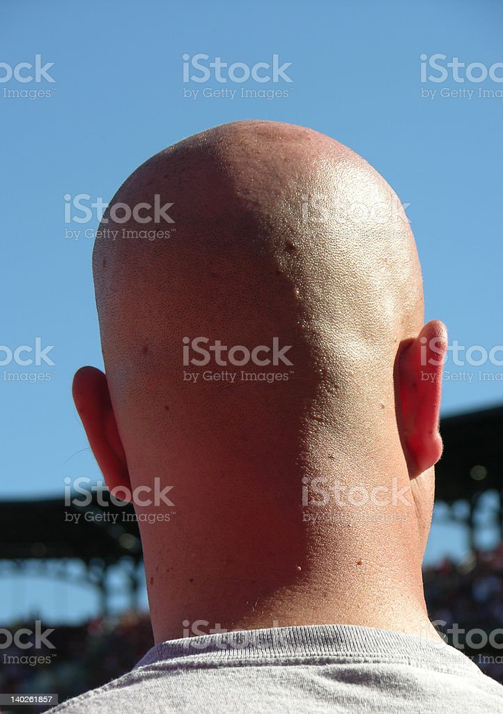 Bald head and Blue Sky royalty-free stock photo