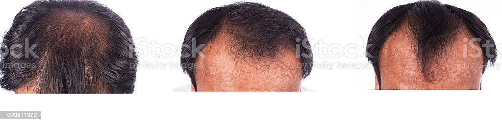 bald head of young man on white background stock photo