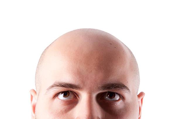 Bald Head stock photo