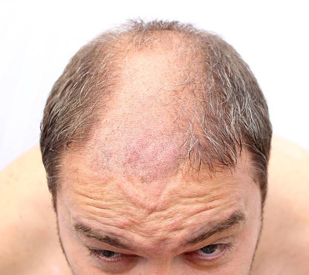glatze - cut wrong hair stock-fotos und bilder