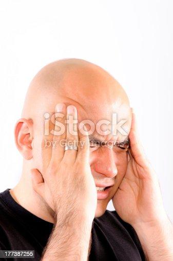 626964348istockphoto Bald headache 177387255