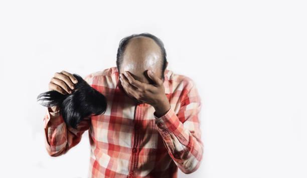 수치에 그의 얼굴을 덮고 대머리 남자는 텍스트 공간을 가진 흰색 배경에 자신의가 발을 들고 - 가발 뉴스 사진 이미지