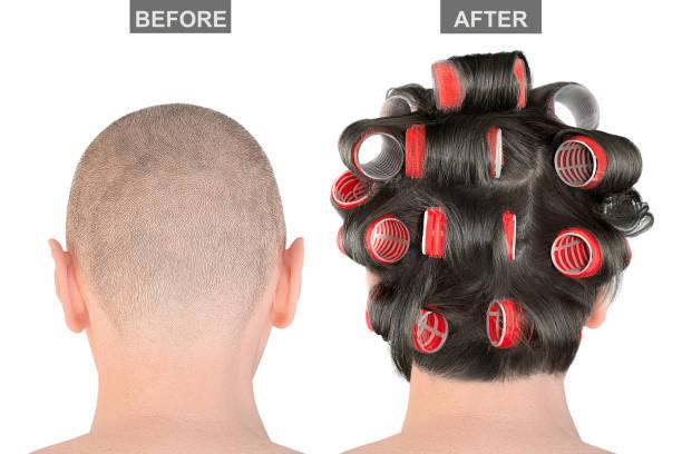 kaal mensenhoofd vóór en na haartransplantatie, die op witte achtergrond wordt geïsoleerd. creatieve conceptbehandeling van alopecia. resultaten procedure verlengingen - hair grow cyclus stockfoto's en -beelden