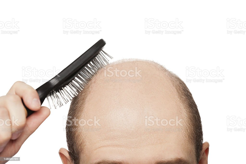 Bald man head stock photo
