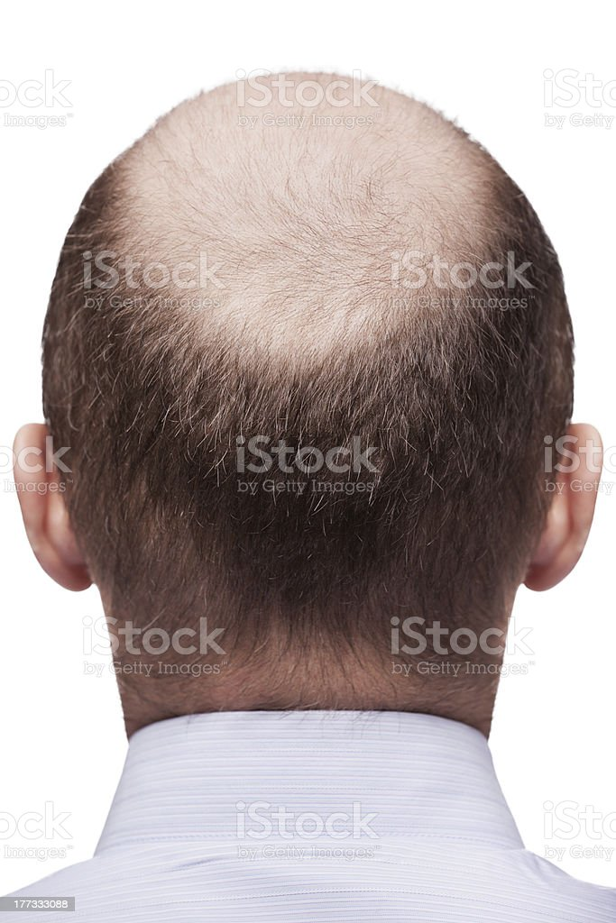 Bald man head royalty-free stock photo