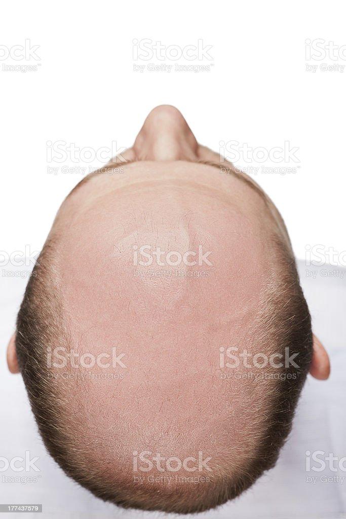Bald Mann Kopf – Foto