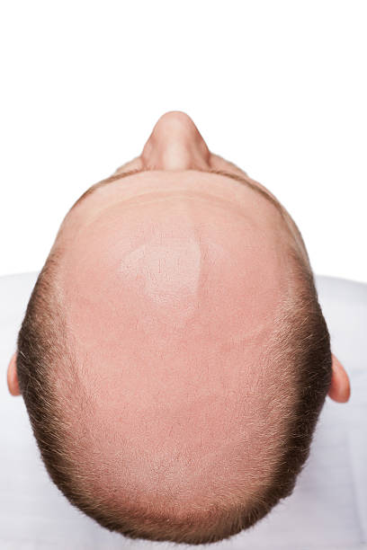 bald man head - human head stock photos and pictures