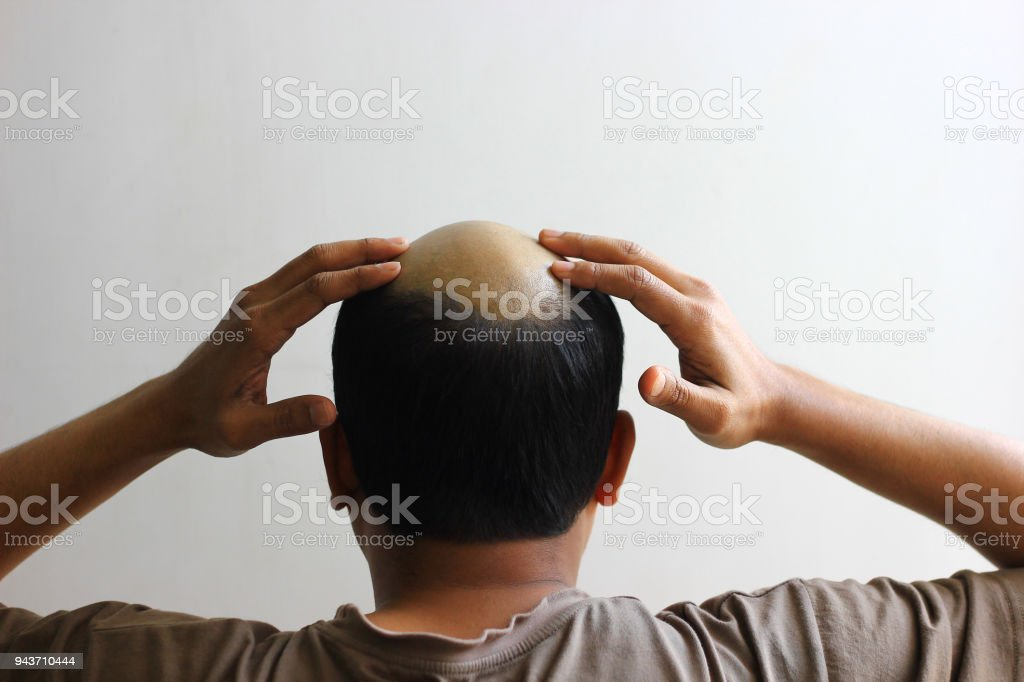 bald man in isolated white background worried and both hands on his scalp.view from behind stock photo
