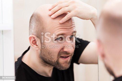istock Bald man looking mirror at head baldness and hair loss 953668892