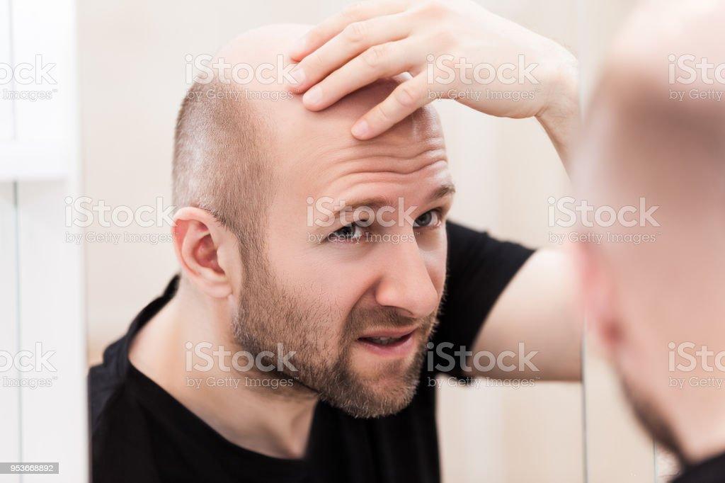 Bald man looking mirror at head baldness and hair loss stock photo