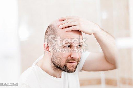 istock Bald man looking mirror at head baldness and hair loss 955998402