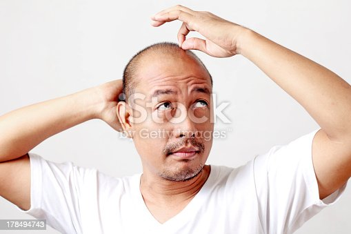 istock Bald man looking up holding head and clutching hair strand 178494743