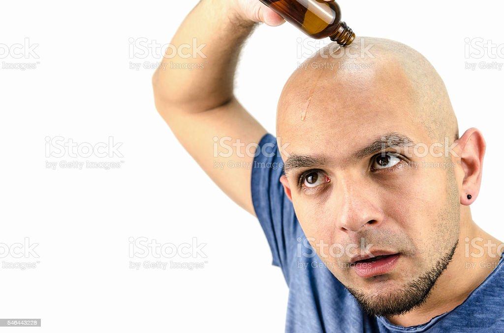 bald man puts oil for hair loss - foto de acervo