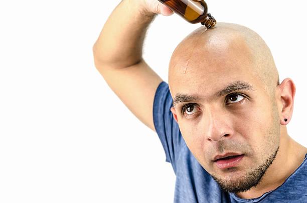 bald man puts oil for hair loss - haare wachsen stock-fotos und bilder