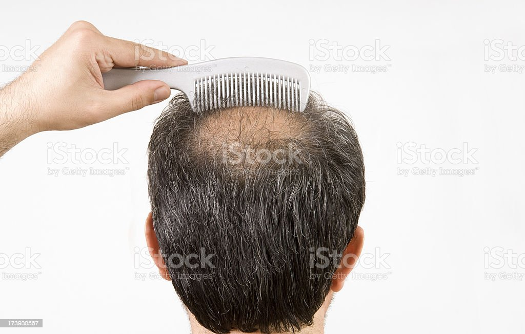 bald men is combing his hair stock photo
