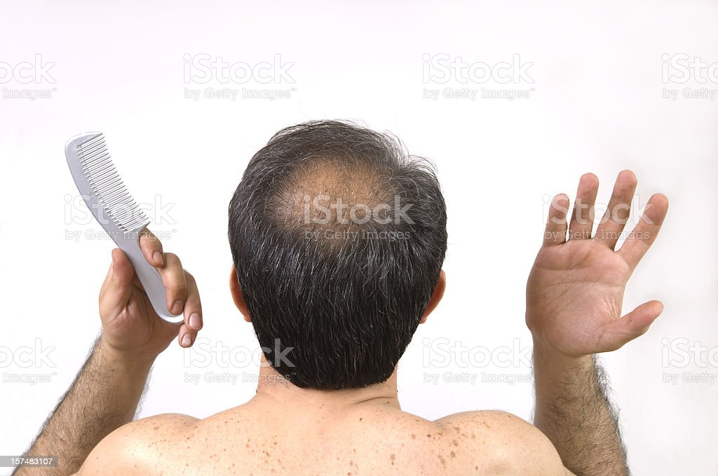 bald men stock photo