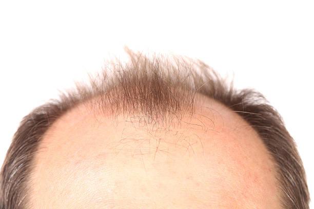 bald herren. - glatze schneiden stock-fotos und bilder