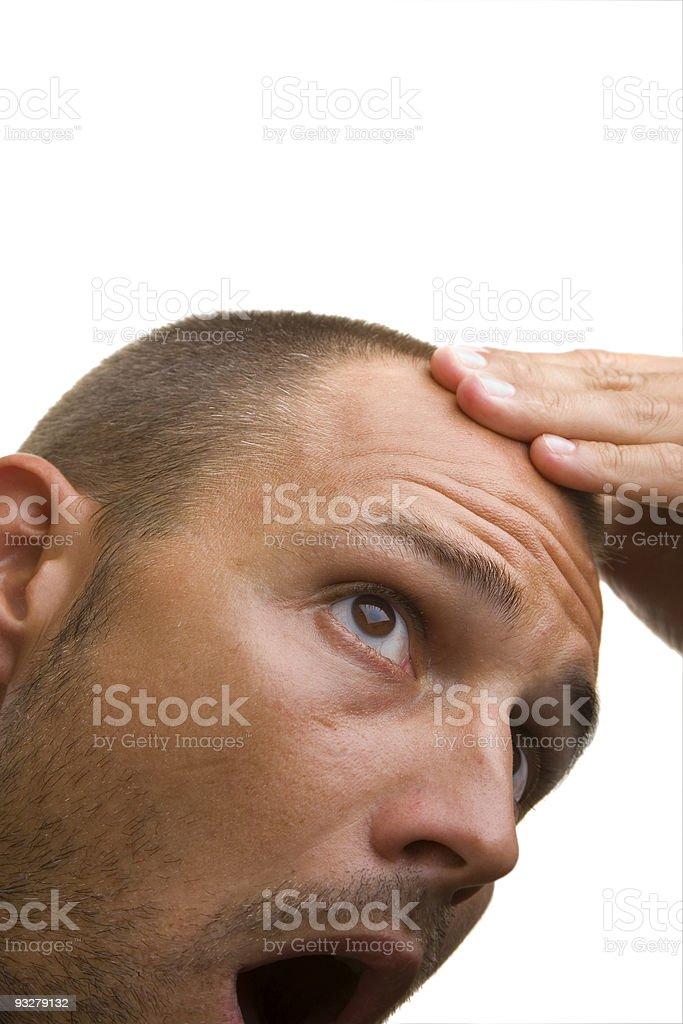 Bald Spot royalty-free stock photo