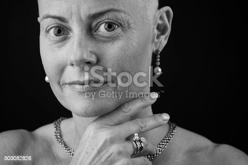 469949126 istock photo Bald woman in chemotherapy fighting cancer 503082826