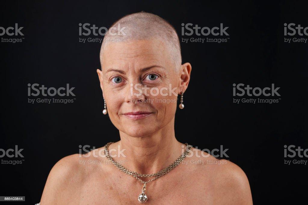 Glatze Frau In Der Chemotherapie Bei Krebs Haarausfall