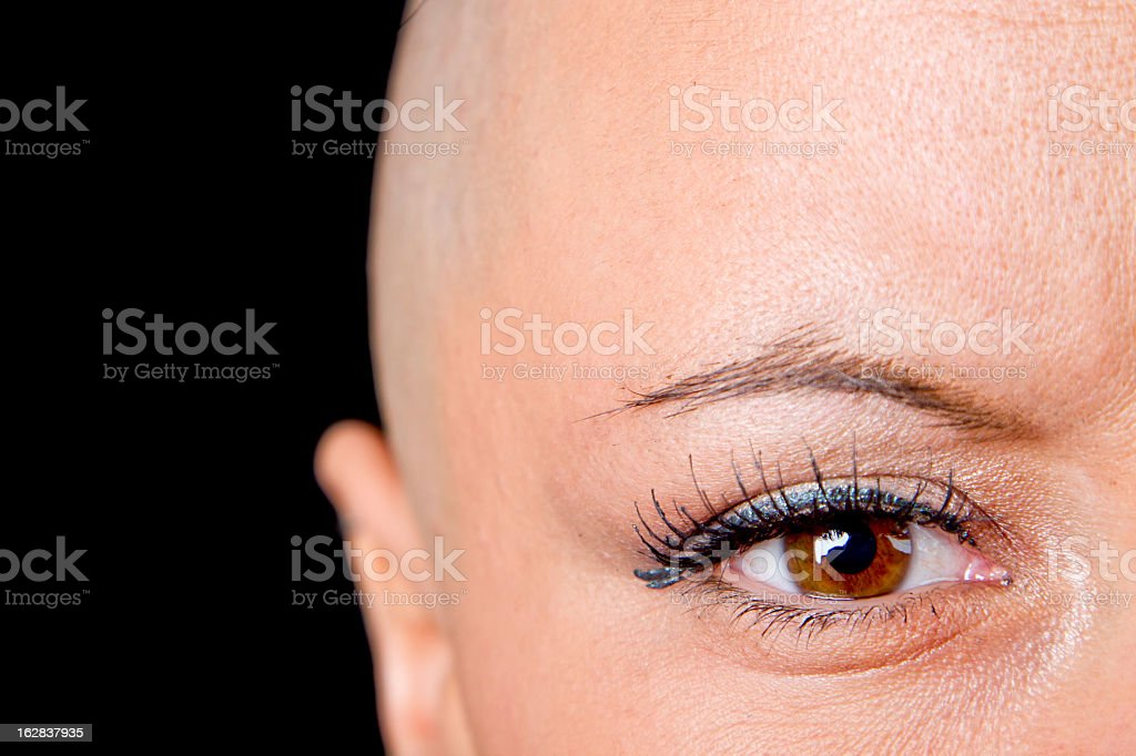 A bald woman who is a cancer survivor stock photo