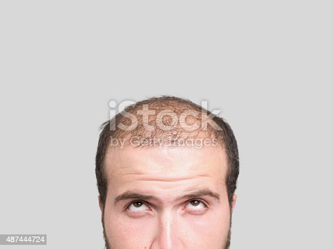 Man without hair on head