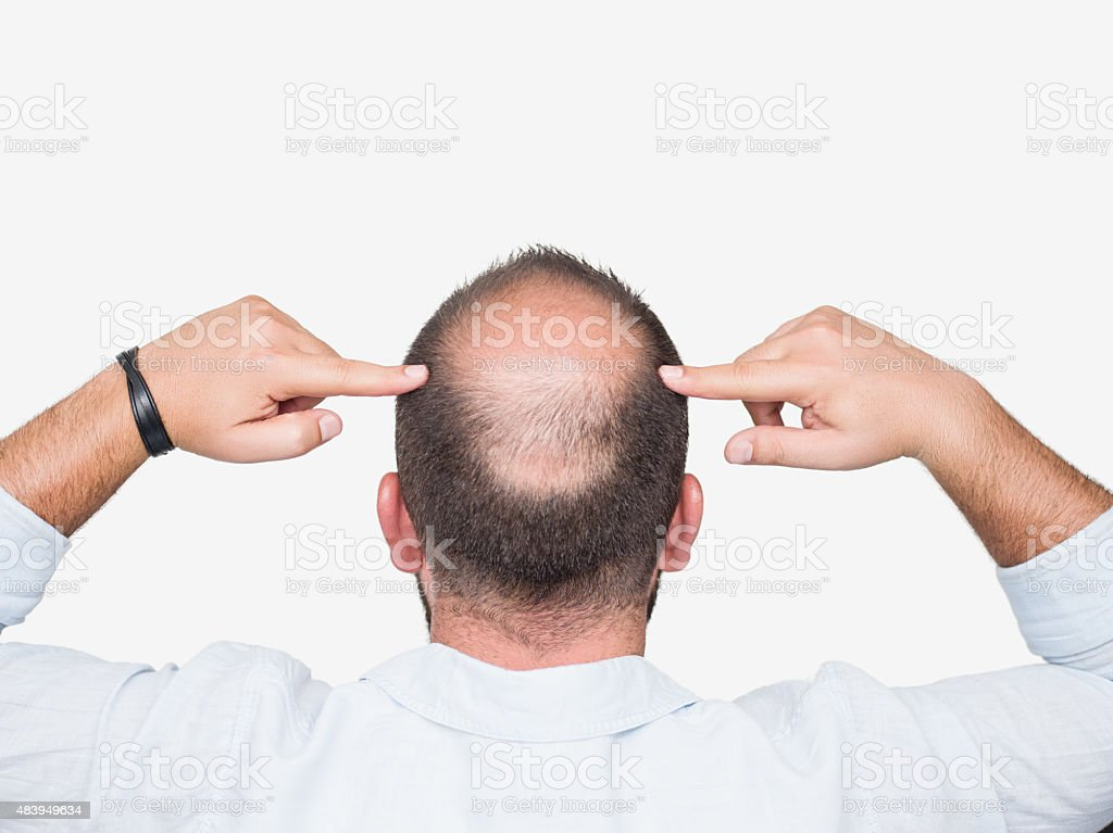 Bald young man, rear view stock photo
