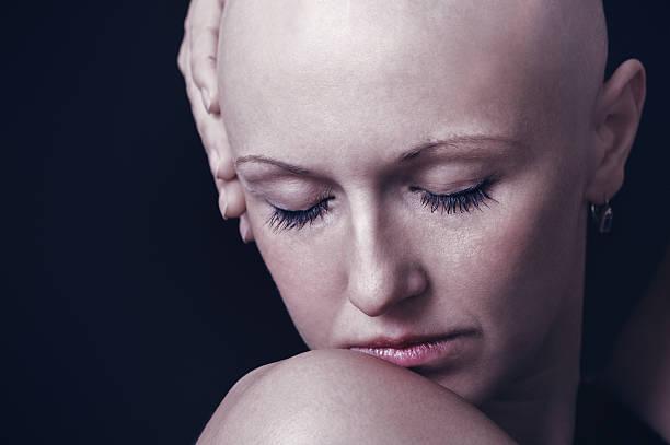 Erotic video of bald headed women, rachel nichols naked modeling pictures