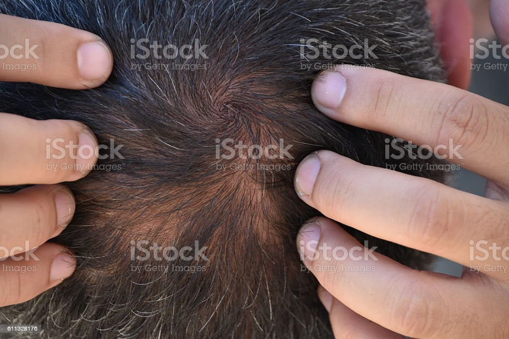 Balding Head stock photo