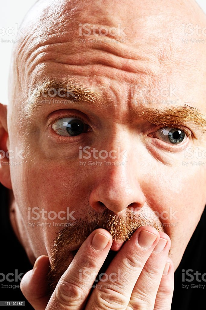 Balding man is upset and embarrassed stock photo
