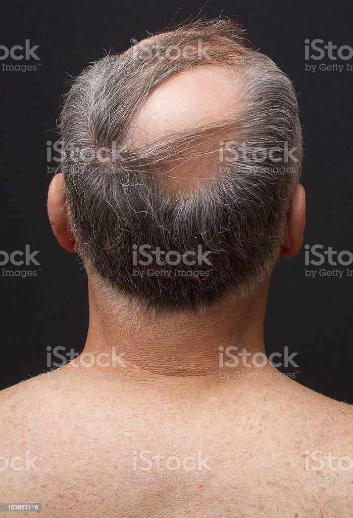 Balding Man's Head stock photo