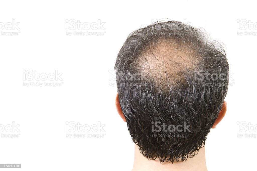 balding royalty-free stock photo