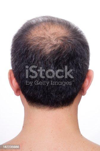 istock Balding 182235686