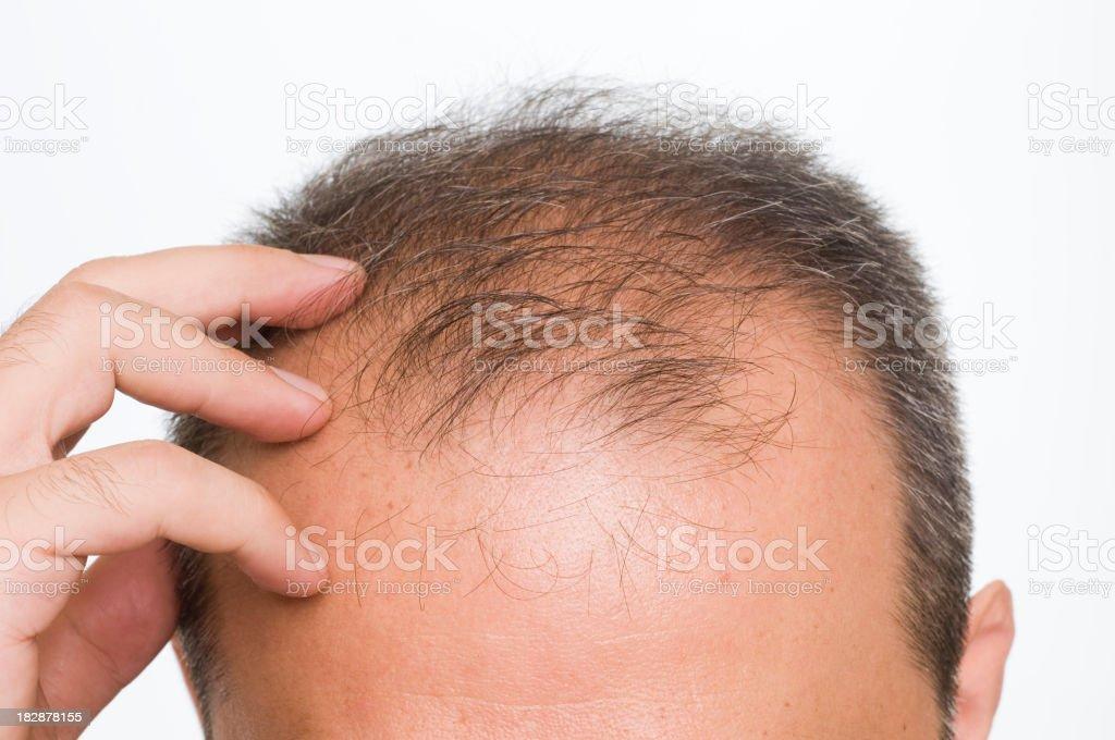 Balding stock photo