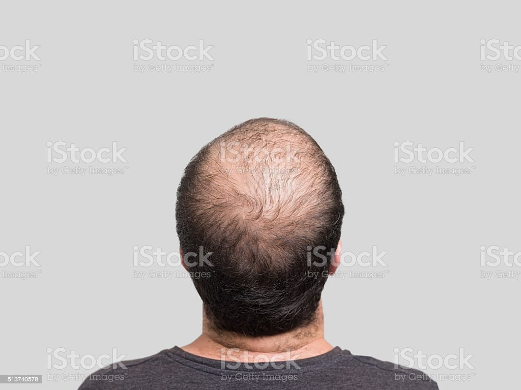 Balding stock photo