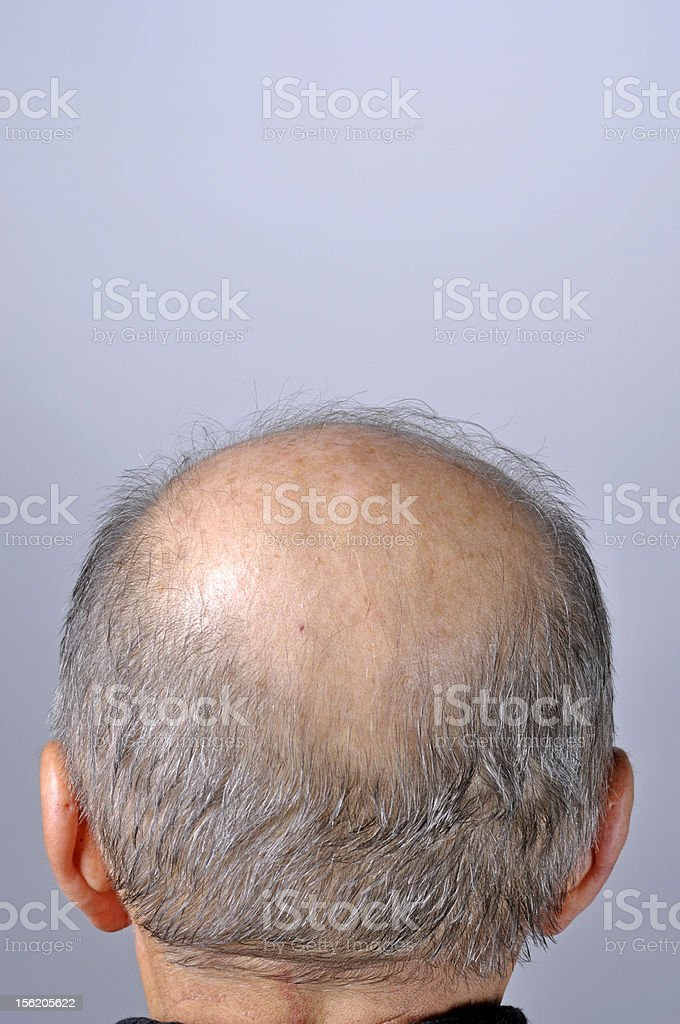 balding rear wiew stock photo