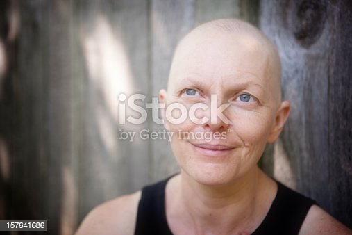 469949126 istock photo Balding woman fighting breast cancer outdoors looking off camera. 157641686